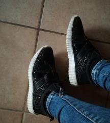 Csillámos cipő 😍